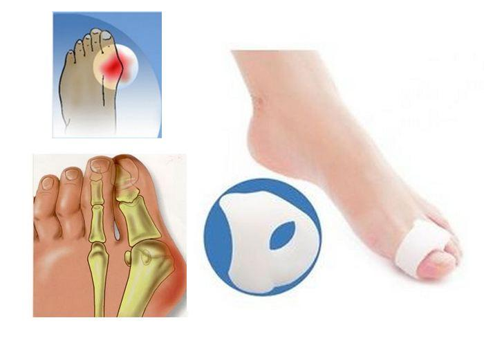 Toe Separator Silicone Gel Bunion Spacer Corrector Pain Relief