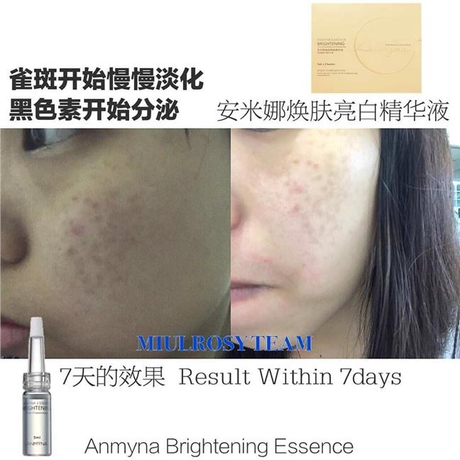 ANMYNA Essence Brightening 安米娜焕颜&#2..