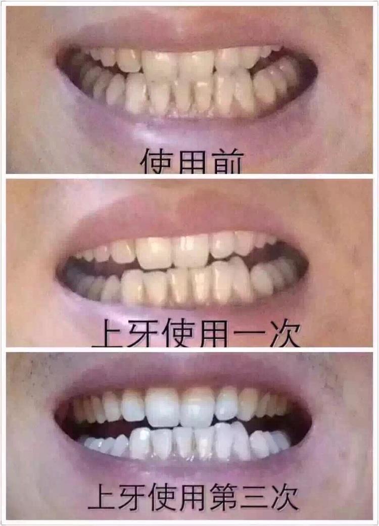 whitening light teeth s blue system white itm rapid tooth ebay