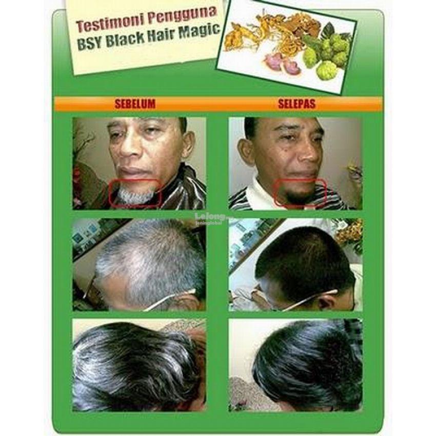 BSY Noni Black Hair Magic Genuine (20 X 20ml/sachet)