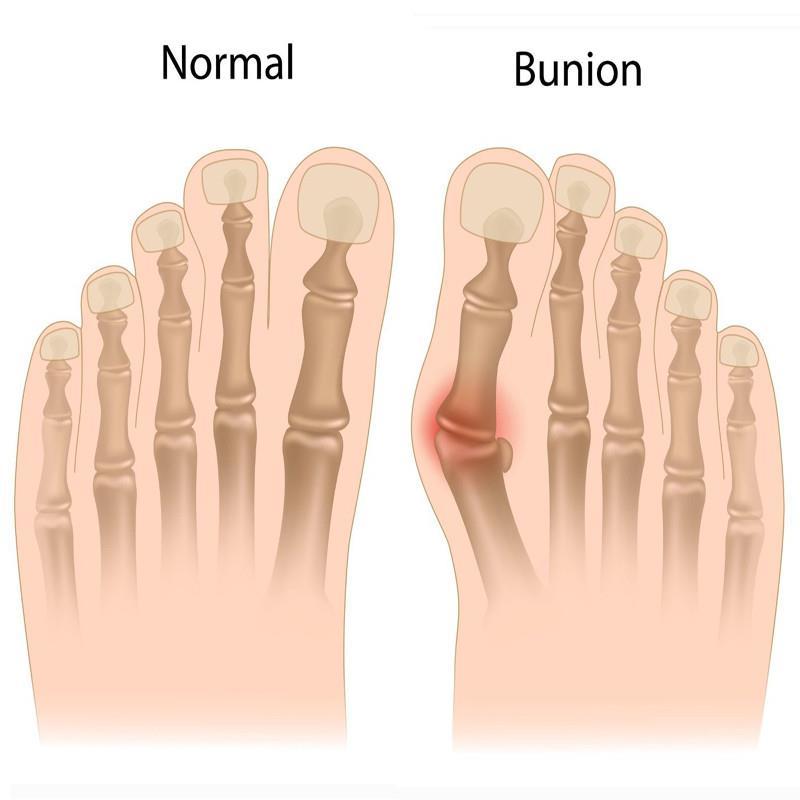 Bunion Bent Toe Hallux Valgus Splint (end 6/3/2019 9:15 AM)