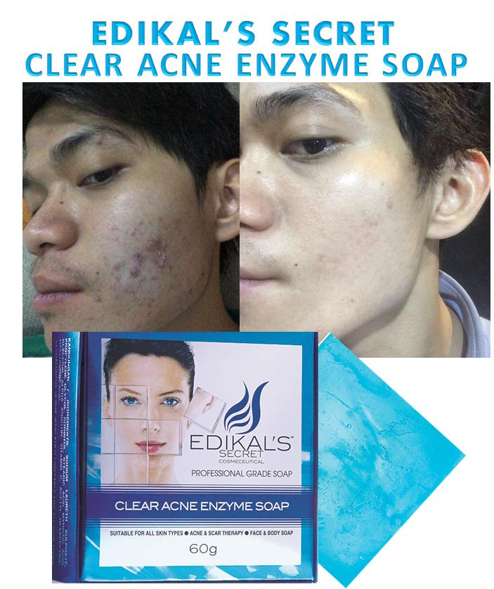 Clear Acne Enzyme Soap by Edikal's Secret ~ 2 in 1 Scar & Acne therapy