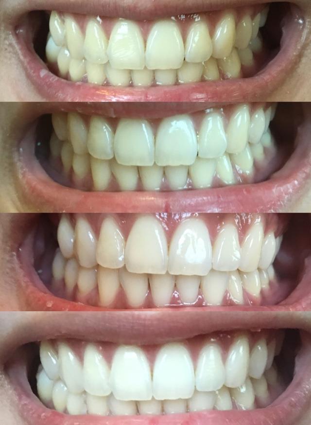 3d White Whitestrips Gentle Routine Teeth Whitening Kit
