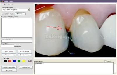 Dental Management System