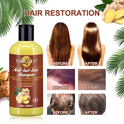Ginger Shampoo,Anti Hair Loss Shampoo,Hair Growth Shampoo,Hair Regrowth Shampo