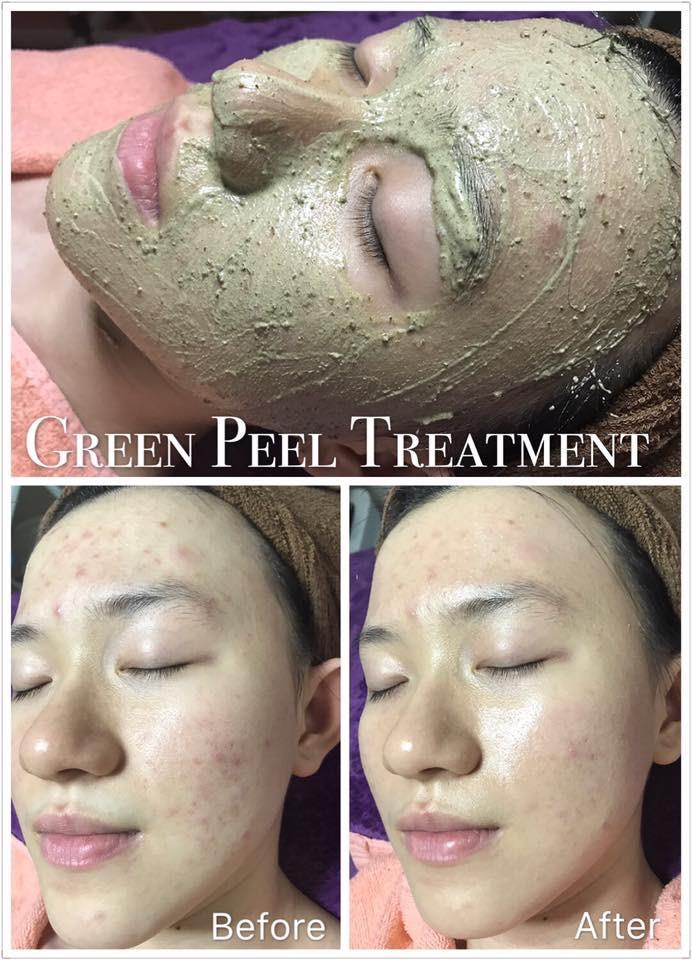 Green Peel Treatment