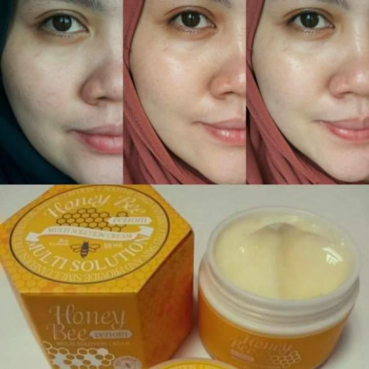 HONEY BEE VENOM Multi Solution Cream 55ml ~ Free Lipsgloss HopeGirl