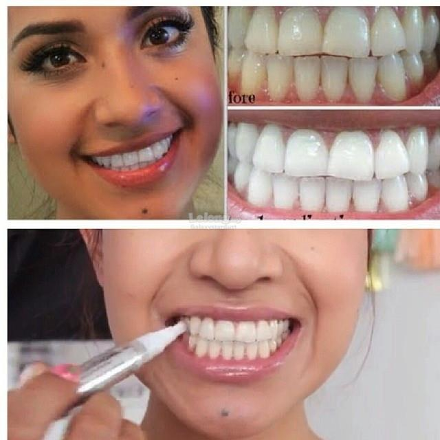 Satisfied Result Teeth Whitening Pen Anytime Anywhere On The Go