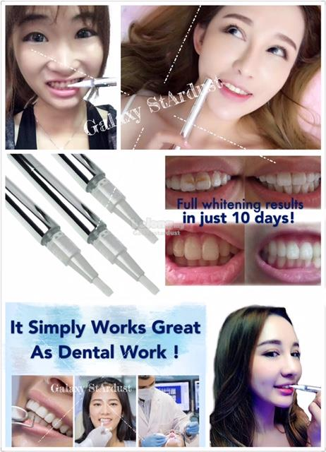Satisfied Result,Teeth Whitening Pen,Anytime Anywhere,On-The-Go