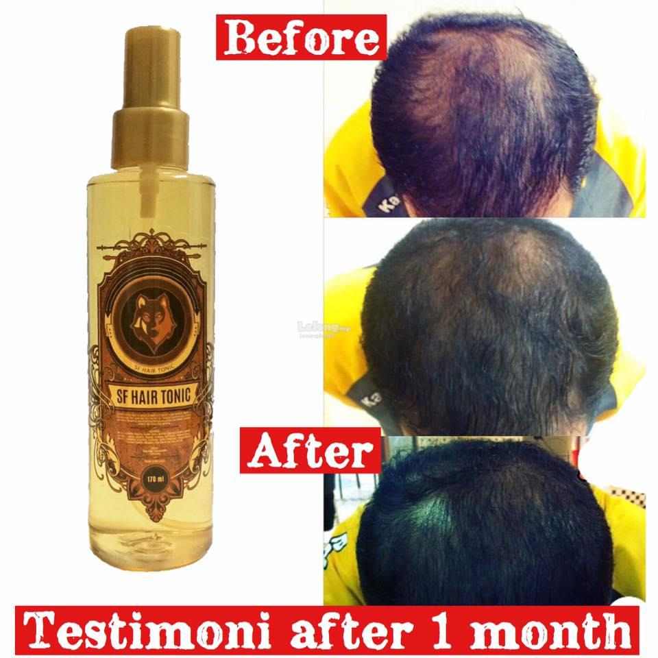 SF Hair Tonic for Hair Loss Treatment