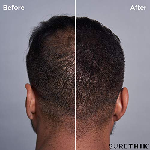 SureThik Hair Building Fibers- Conceal Hair Loss, Thinning Hair  & Balding Spo