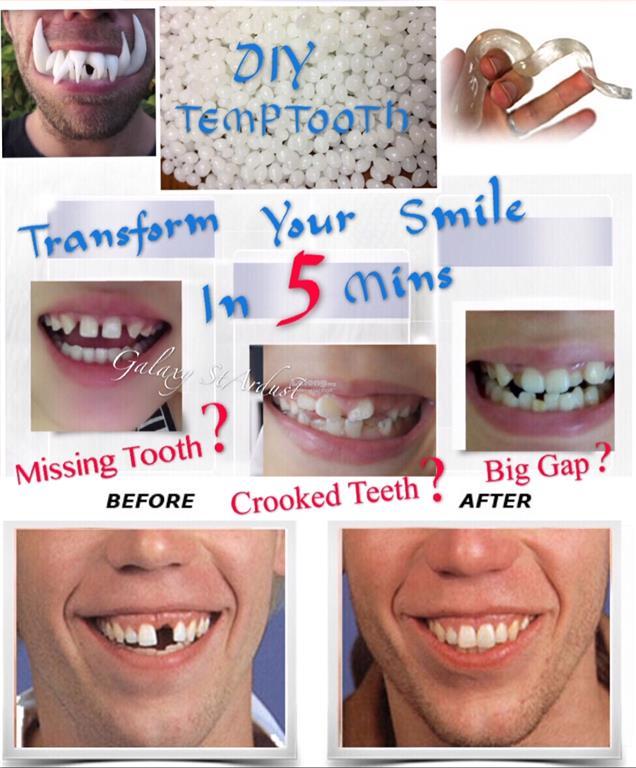 Temporary DIY Fake Tooth,Multi Purpose Thermo Moldable Polymorph