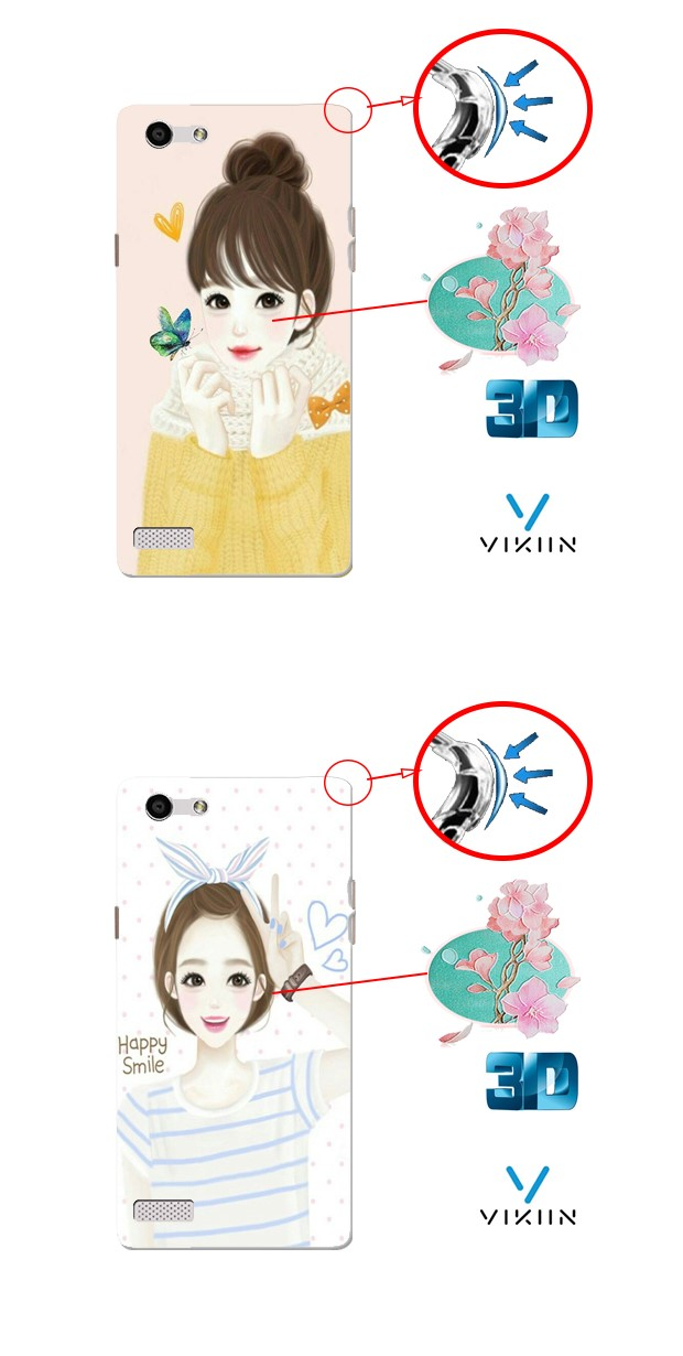 Xiaomi Redmi4X 4X Armor DIY Case Casing Cover Cute Girl Customize