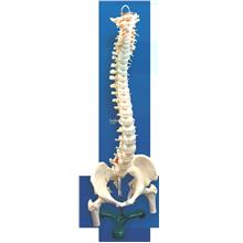 Model of Vertebral Column with Pelvis and Femur Heads with Iron Stand
